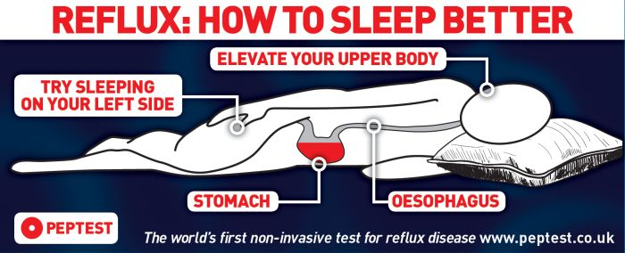Sleep Apnea And Reflux Disease Peptest A Reflux