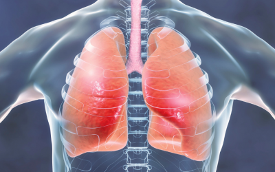 Reflux disease may 'contribute to the development of lung fibrosis'